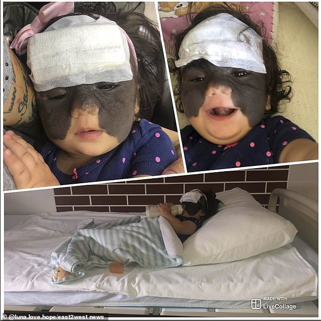 Doctors in US said Luna would need to endure up to 100 operations using laser surgery over five years, which left Mrs Fenner