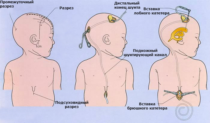 Внутричерепное давление: симптомы, лечение, признаки ...